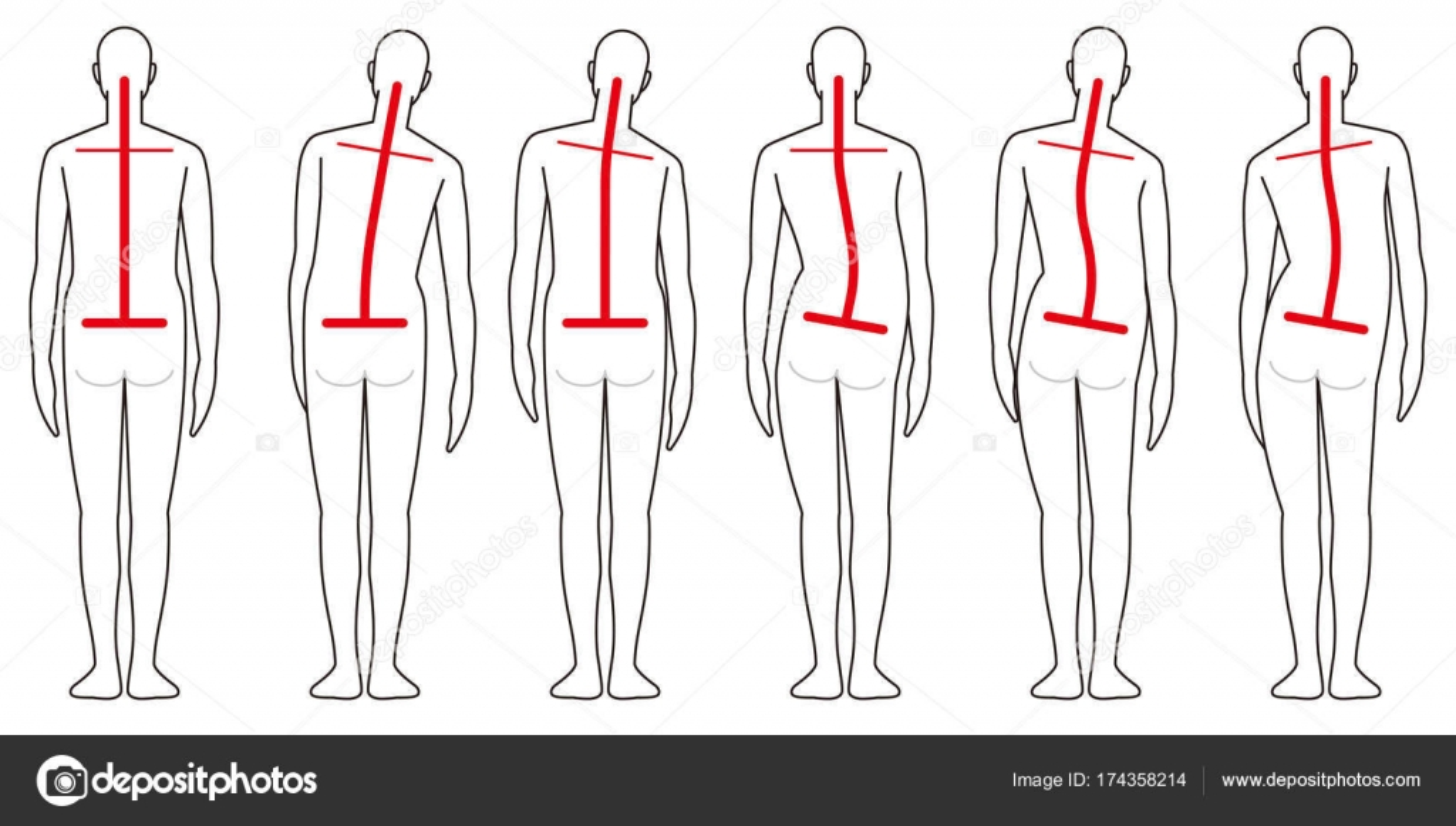 Columna vertebral humana forma posterior — Vector de stock ...