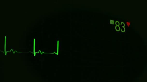 Herzschlagpuls in grüner ununterbrochener Linie