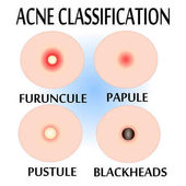 Fotografie Types of Acne and Pimples,
