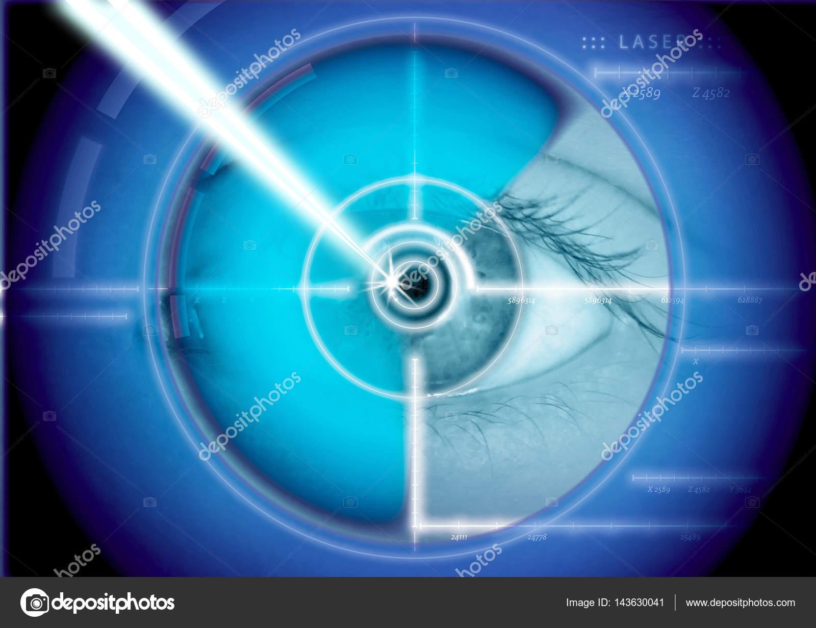 cirugía láser ocular, corrección con láser, correcciones de ojos ...
