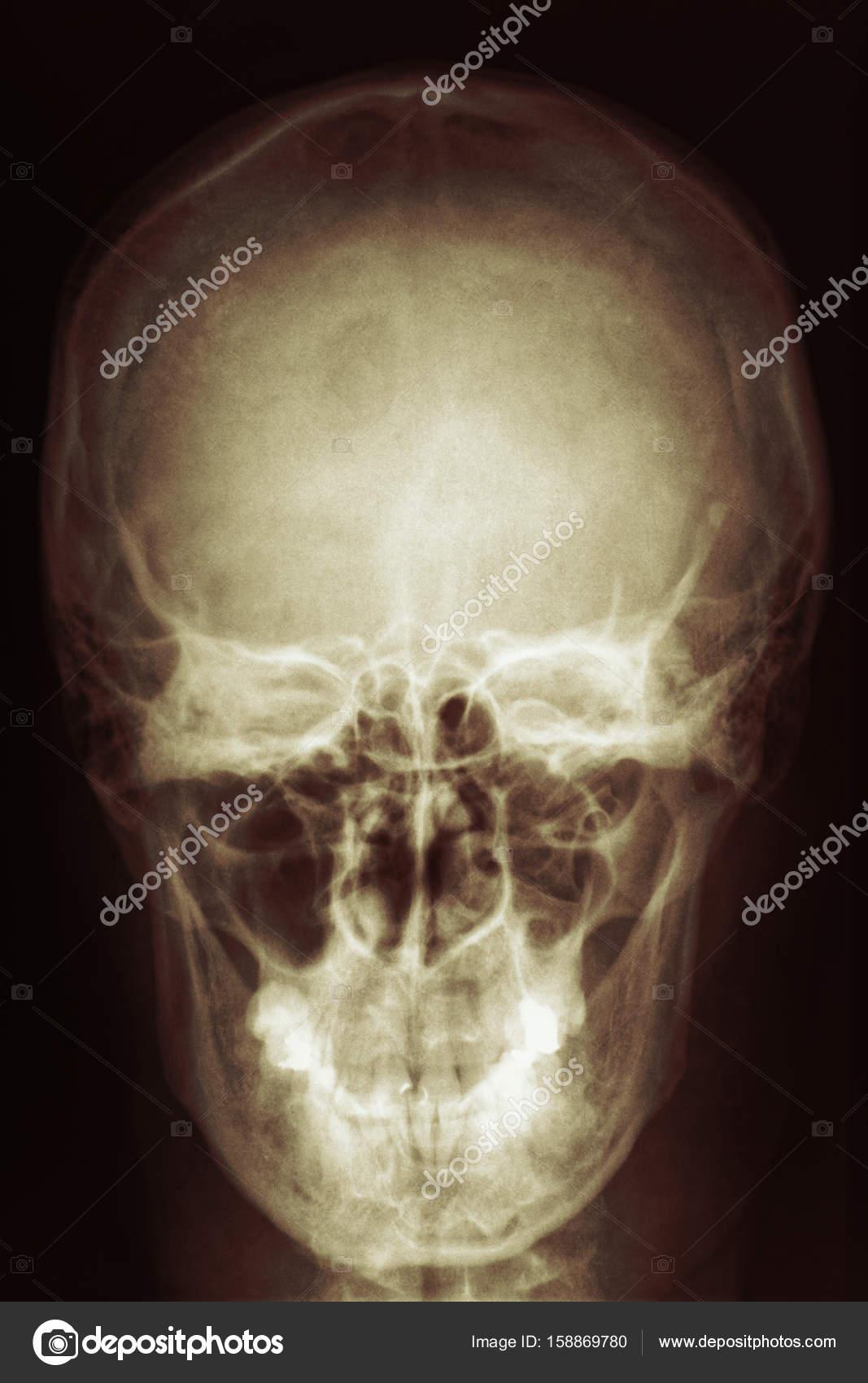 Exploración de cabeza Radiología de cráneo por rayos x — Foto de ...