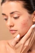 nahý dívka dotýkat tvář s problémem kůže izolované na béžové
