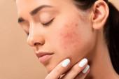 mladá žena se zavřenýma očima dotýkající se obličeje s akné izolované na béžové