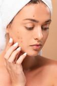 nahý dívka v ručníku dotýkat tvář s akné izolované na béžové