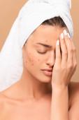 frustrovaná a nahá dívka s akné zakrývající tvář izolované na béžové