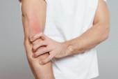 Ausgeschnittene Ansicht eines Mannes, der Hand mit Allergie berührt, isoliert auf grau