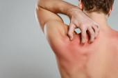 Teilansicht eines Mannes, der die Haut mit einer Allergie kratzt, isoliert auf grau