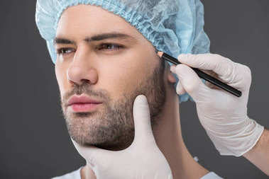 doctor drawing lines for facelifting on man, isolated on grey