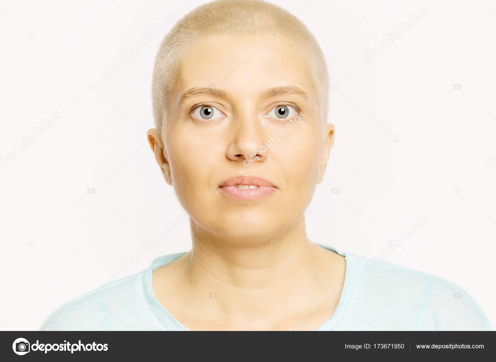 Glatze Junge Frau Mit Einem Neutralen Gesichtsausdruck Stockfoto