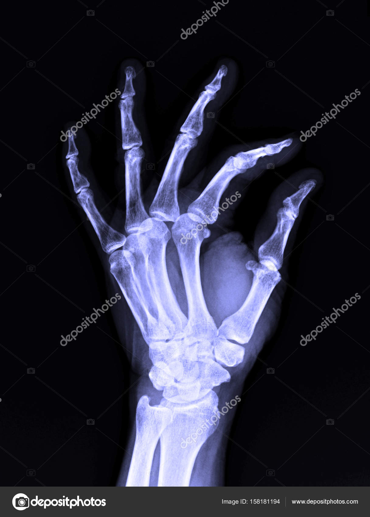 X-Ray image of male human left hand — Stock Photo © v74 #158181194