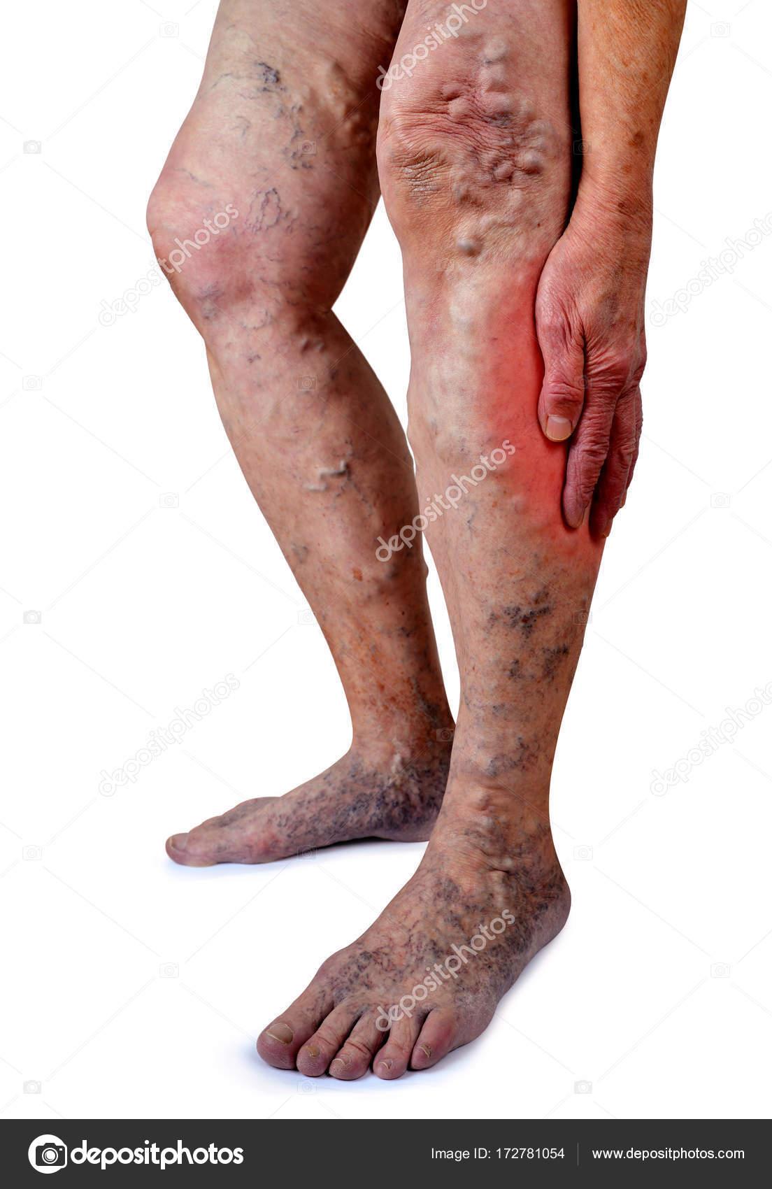 Las venas varicosas en piernas de mujer — Foto de stock © vencav ...