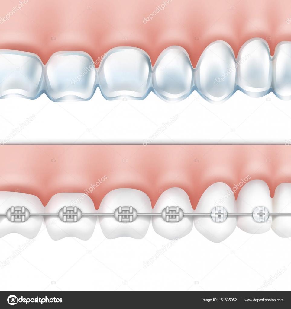 dientes humanos con sistema de frenos — Vector de stock © MSSA ...