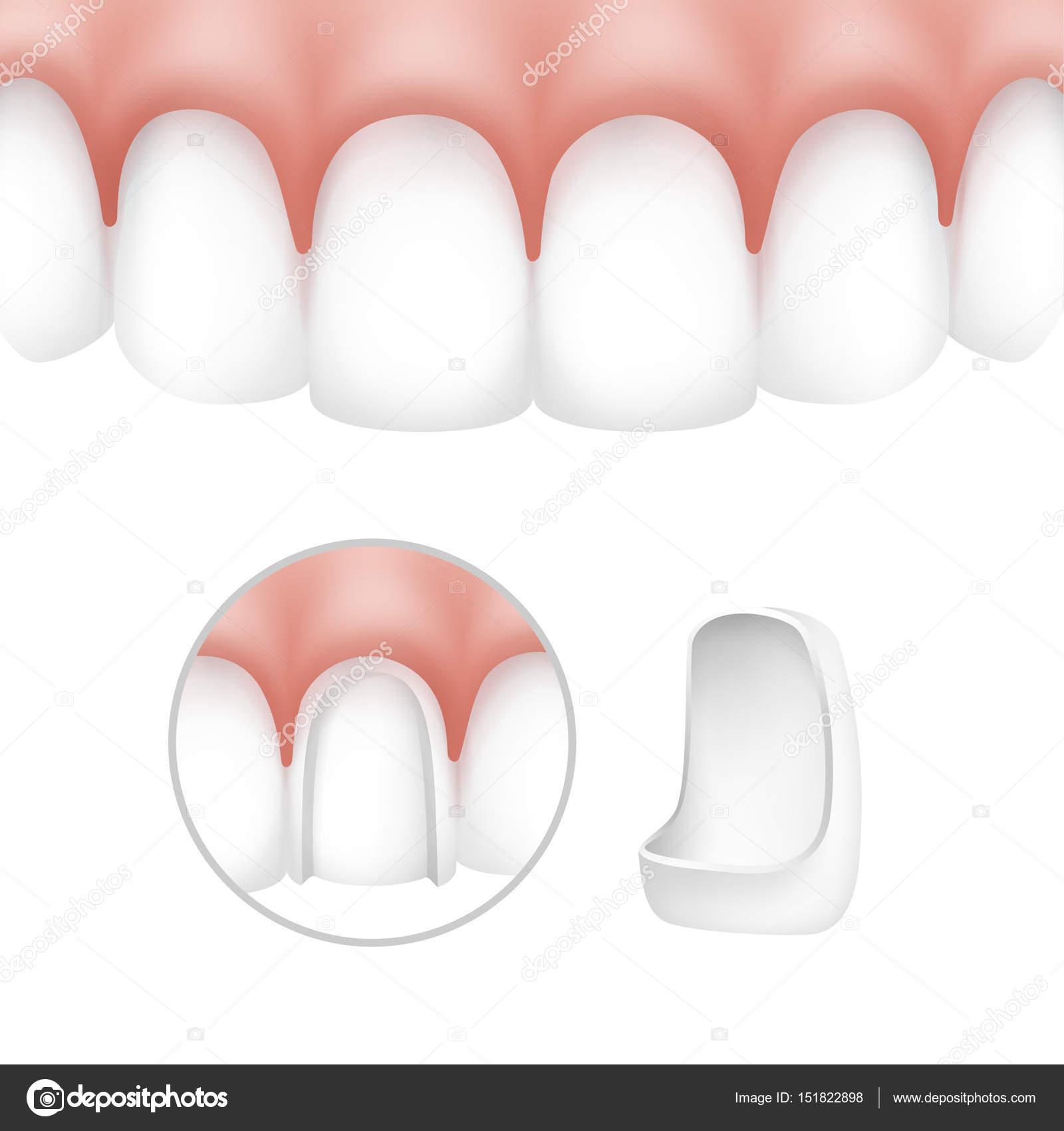 Carillas dentales en dientes humanos — Archivo Imágenes Vectoriales ...