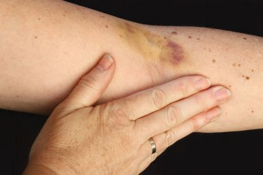 A hematoma on a woman's arm