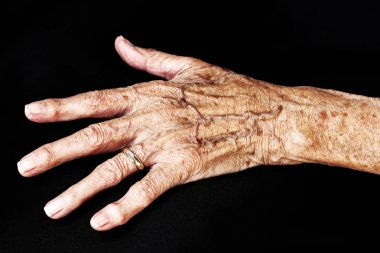 The hand of an old woman