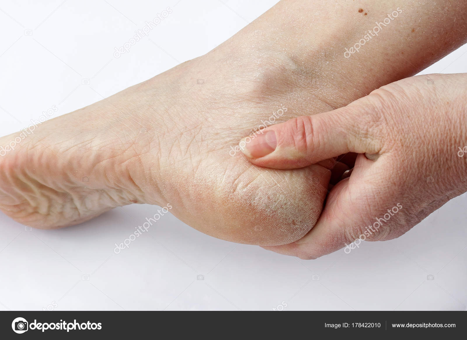 droge huid voeten
