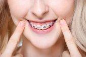Frau zeigt Zähne mit Zahnspangen