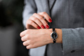 Photo cropped view of businesswoman with bruise on hand touching watch, domestic violence concept