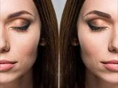 Fotografie Gesicht der Frau vor und nach der Retusche