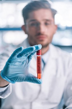 selective focus of immunologist holding test tube with red liquid