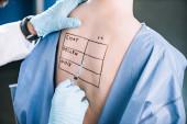 Ausgeschnittene Ansicht eines Allergologen, der Pipette in der Nähe einer Frau hält, mit Buchstaben auf dem markierten Rücken