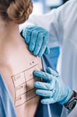 Fotografie oříznutý pohled alergika dotýkajícího se zadní části pacienta písmem a značkou