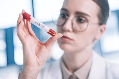 selective focus of immunologist in glasses looking at test tube with virus letters