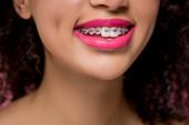 Fotografie abgeschnittene Ansicht eines lächelnden afrikanisch-amerikanischen Mädchens mit Zahnspange und rosa Lippen