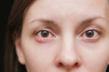 Close up photo of young caucasian brunette woman barley brown eye infection, eyelid abscess, stye, hordeolum. Concept of health, disease and treatment.