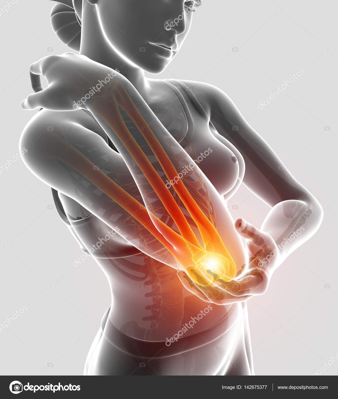 3d Illustration of Women Feeling Elbow pain — Stock Photo ...