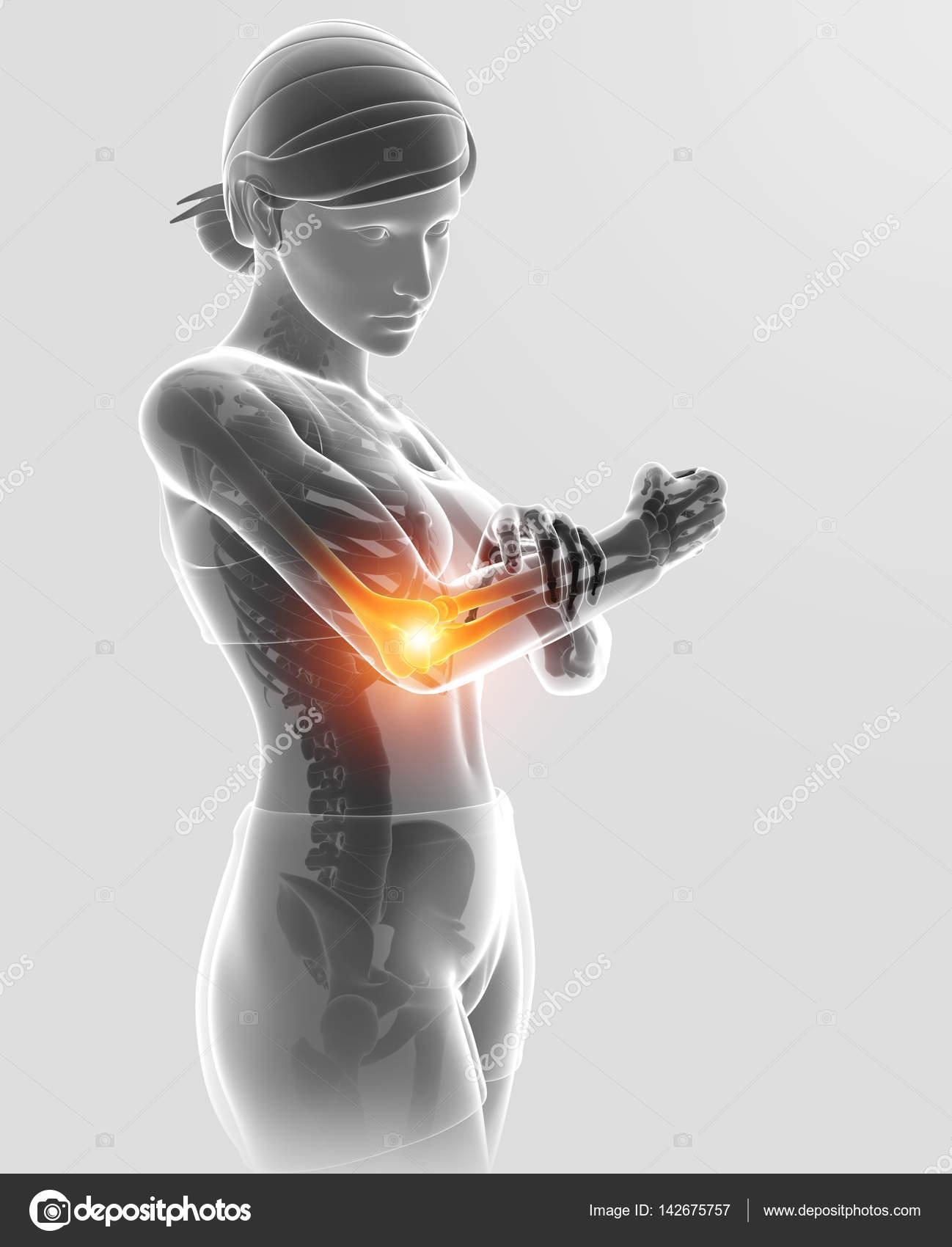 3D Illustration von Frauen Gefühl Ellbogenschmerzen — Stockfoto ...