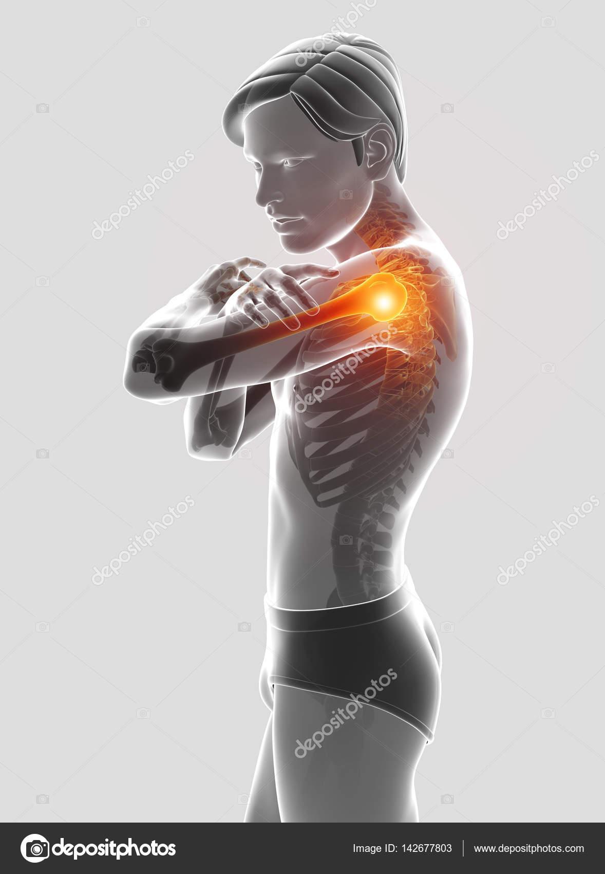 3D Illustration der männlichen Gefühl der Schmerzen in der Schulter ...