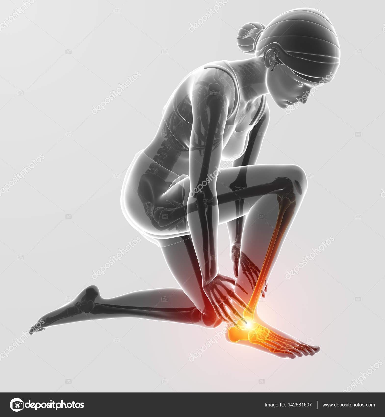 3D Darstellung der weiblichen Fuß mit Schmerzen am Sprunggelenk ...