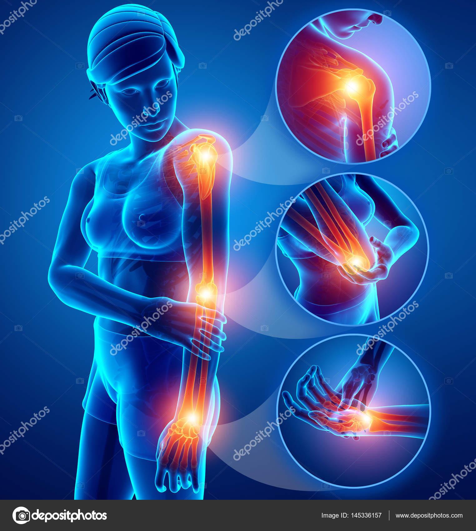 douleur bras droit femme