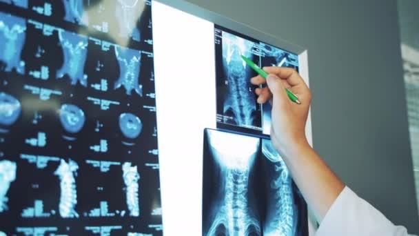 Die Hand des Arztes mit dem Stift zeigt die Elemente auf dem Röntgenbild. Das Röntgenbild der Wirbelsäule hängt an einer weißen Tafel und der Spezialist erklärt die Ergebnisse im Inneren..