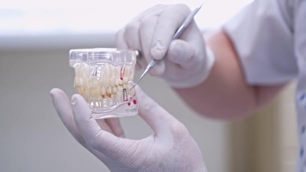 Lékař ukazuje na plastovém vzorku čelisti nebo modelovat různé metody ošetření zubů. Moderní stomatologická klinika. Zdravotní koncept. Bílé lékařské rukavice na mužských rukou lékaře.