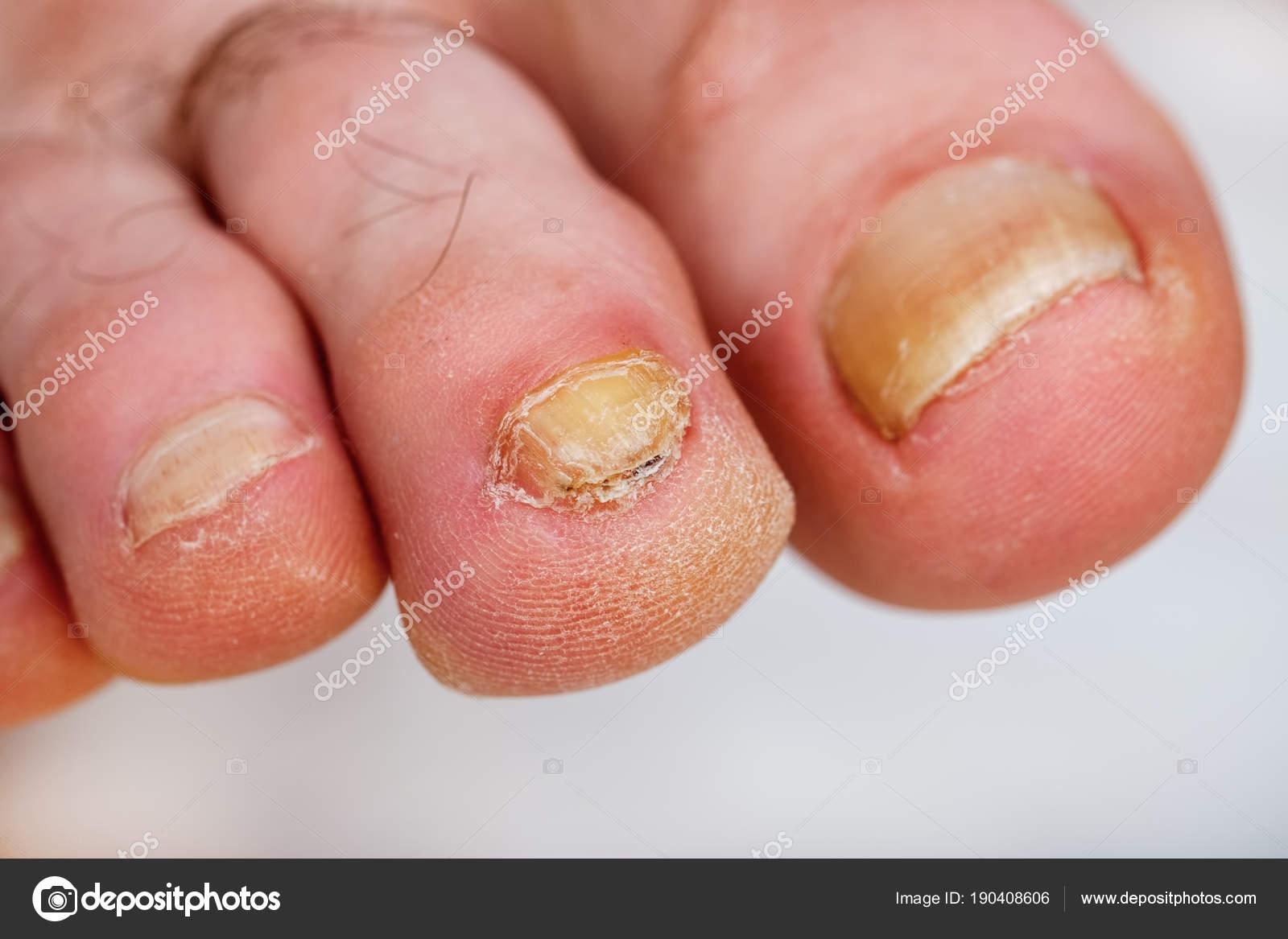 Deformed Nail Plate Toe Infected Nail Fungus — Stock Photo ...