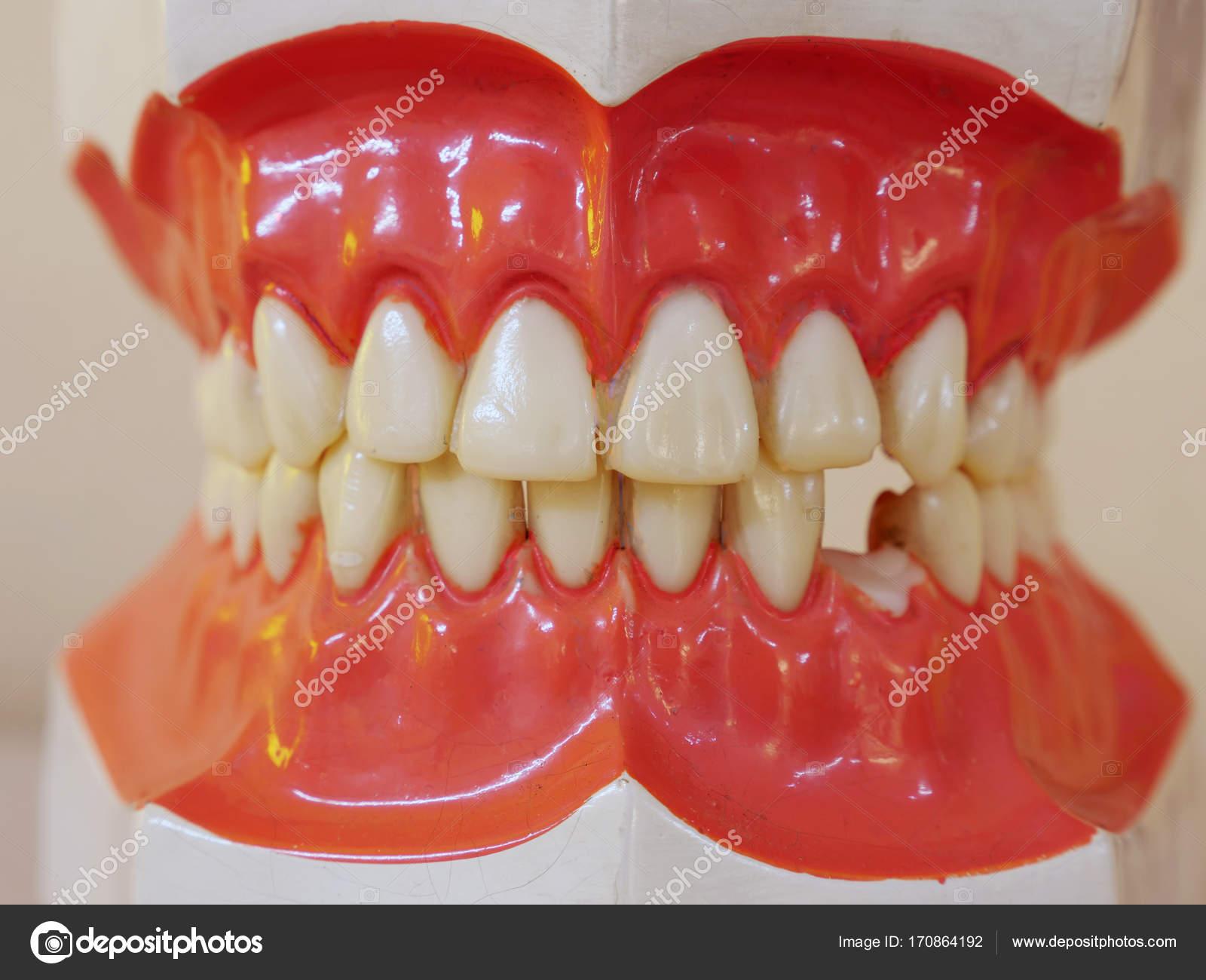 Human Teeth Model Stock Photo Navuthsgmail 170864192