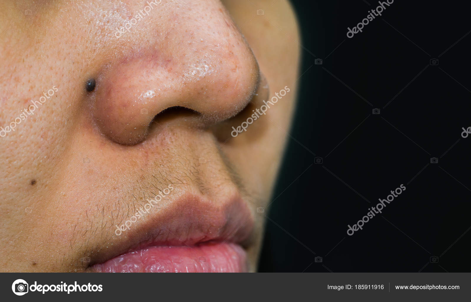Black mole behind nose need CO2 Laser to removal  Blackheads