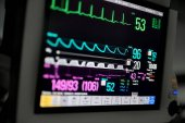 Macro photo of EKG monitor
