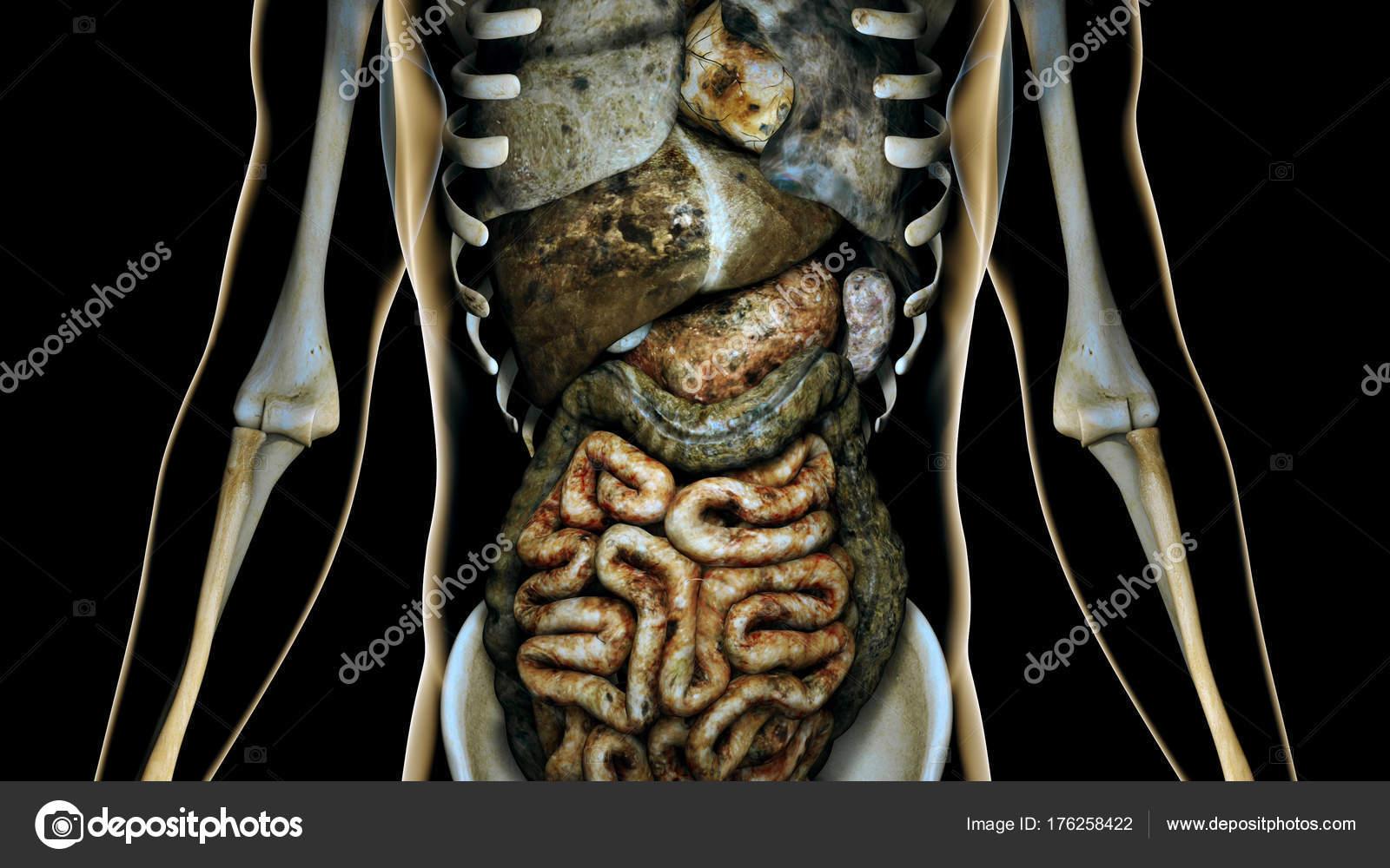Órganos internos enfermos en un ser humano transparente cuerpo ...