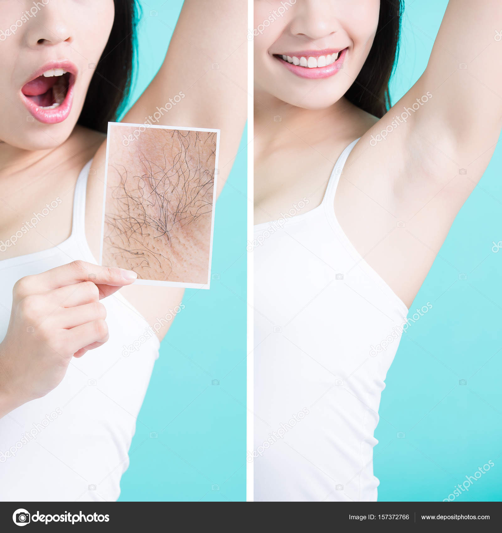 woman with under armpit problem stock photo ryanking999 157372766