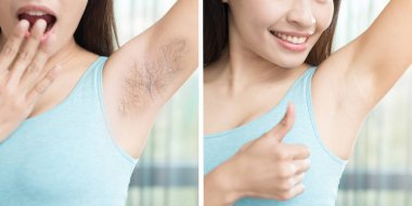 woman with armpit plucking problem