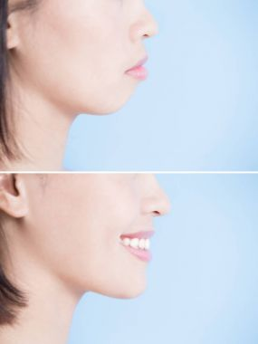 woman with surgery of  tip chin