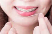 Frau trägt Zahnspange und Zahnseide hält