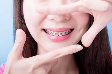 woman wearing  braces and making  frame gesture on the blue background