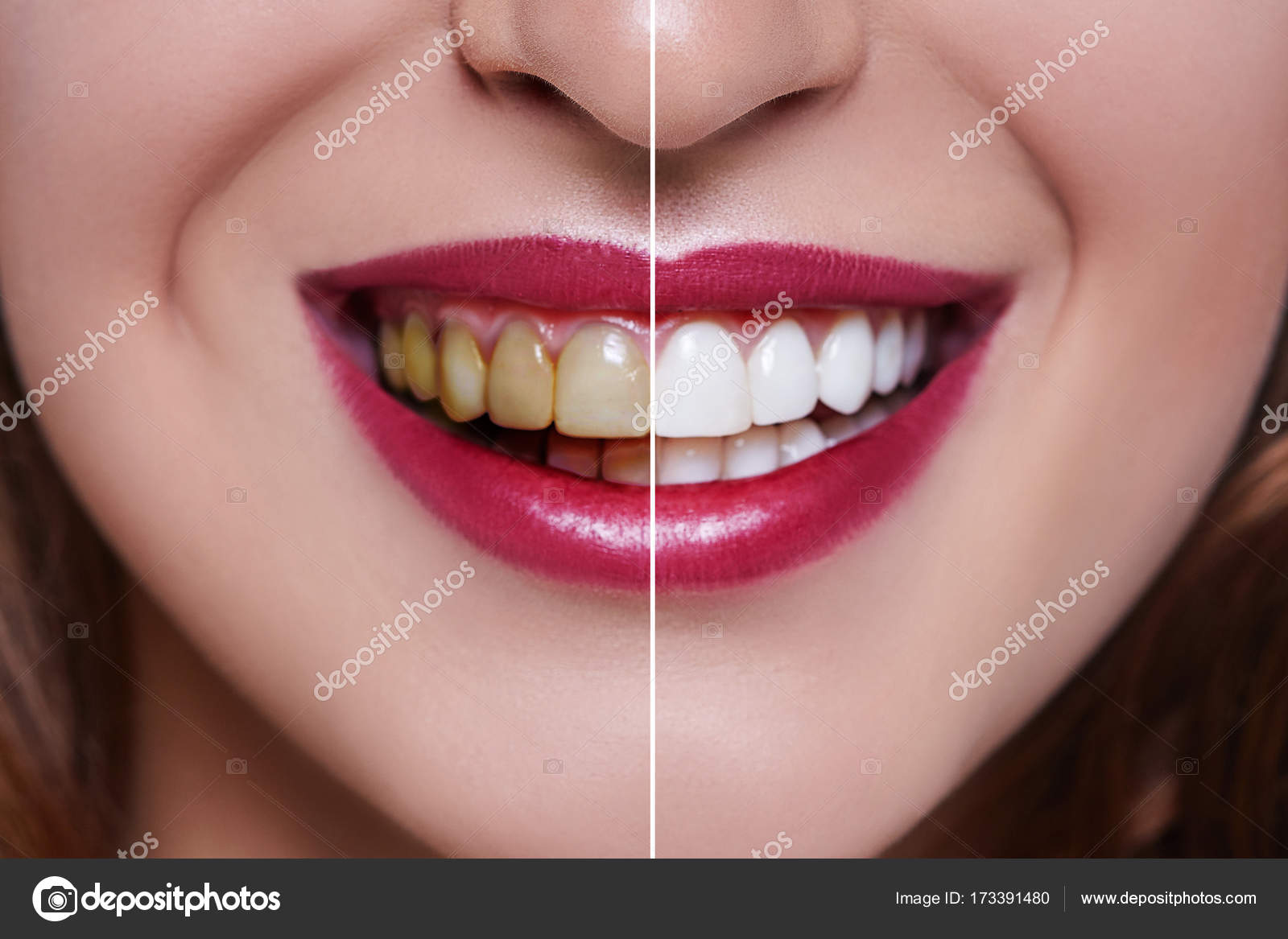Antes E Depois Close Up De Clareamento Dos Dentes Stock Photo