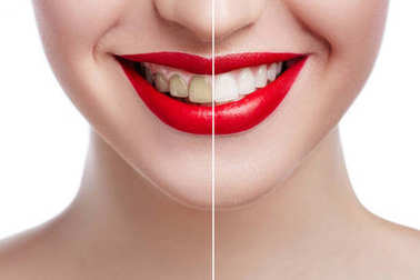 Teeth whitening before after. Woman Teeth Before and After Whitening. Happy smiling woman face close up. Dental health Concept. Oral Care concept