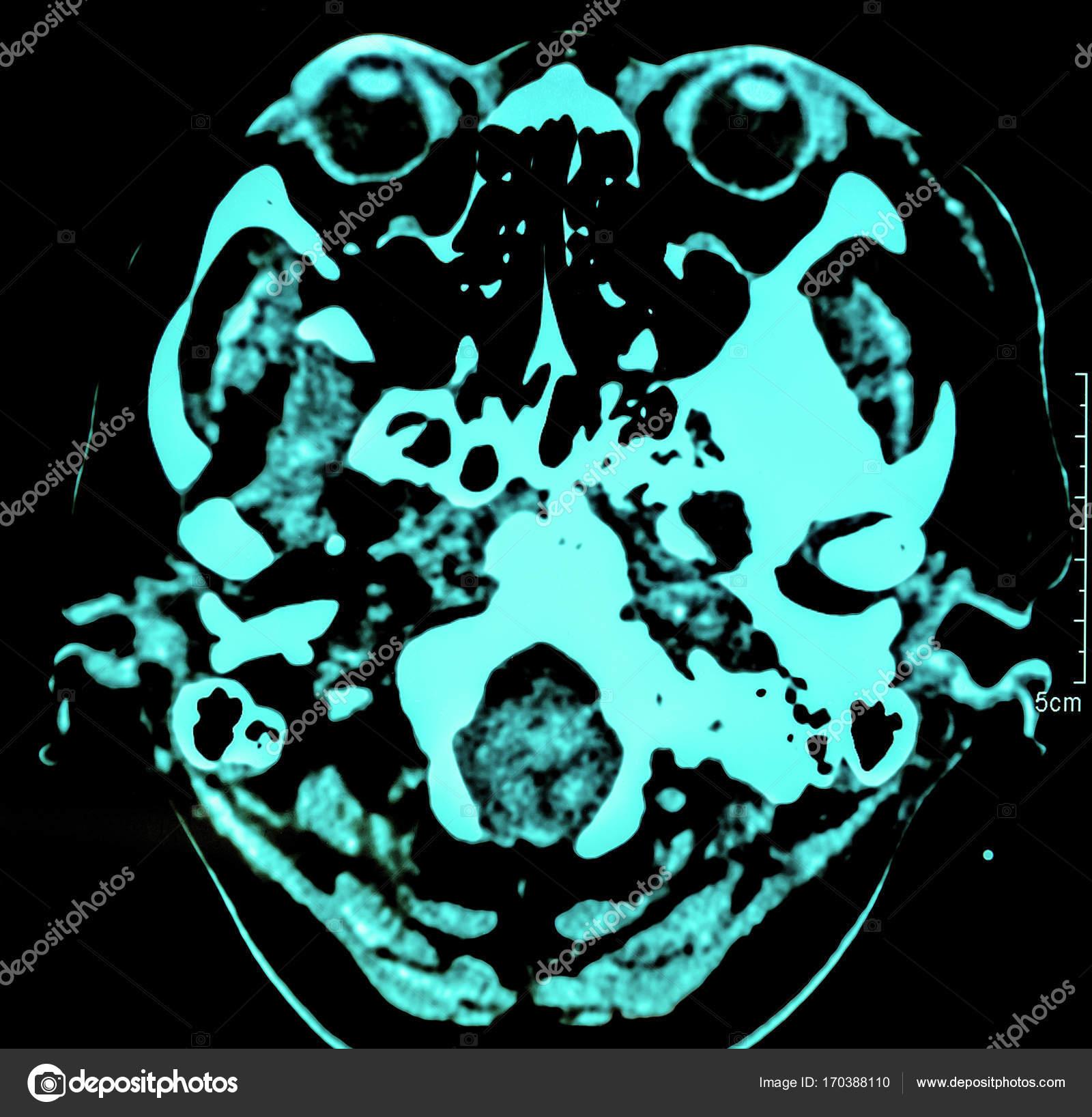 Computerisierte Film Röntgen-Tomographie des menschlichen Gehirns ...