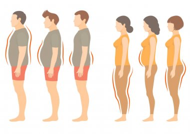 obesity woman and man body type